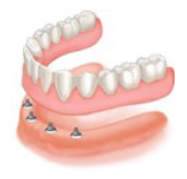 Complete lower implant supported denture