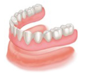 Complete lower denture