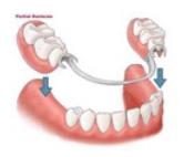 Partial lower denture